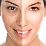 Best Skin Whitening Cream For Dry Skin