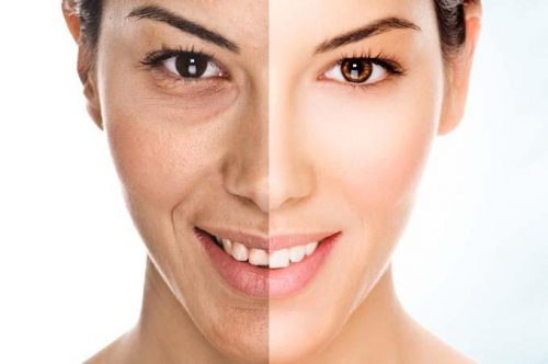 Best skin whitening creams for dry skin
